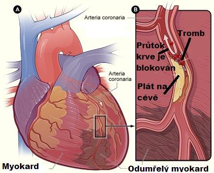 Akutni infarkt myokardu, srdeční infarkt