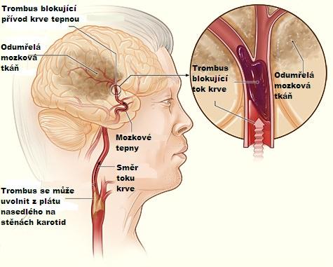cévní mozková příhoda, jak poznat mozkovou mrtvici