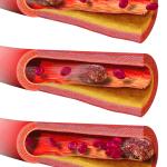 Tromboembolická nemoc