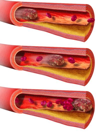 Hormonální antikoncepce, tromboembolická nemoc, trombofilie